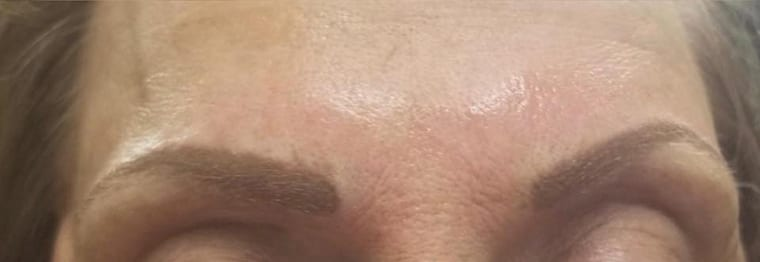 eyebrows after cosmetic work near troy il